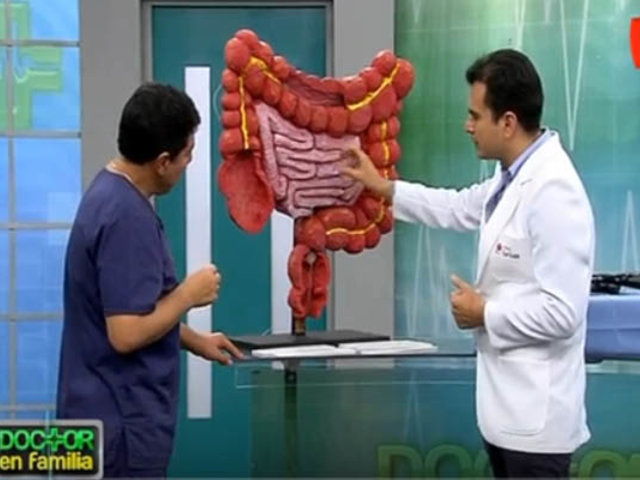 Doctor en Familia: hábitos saludables para prevenir el cáncer de colon