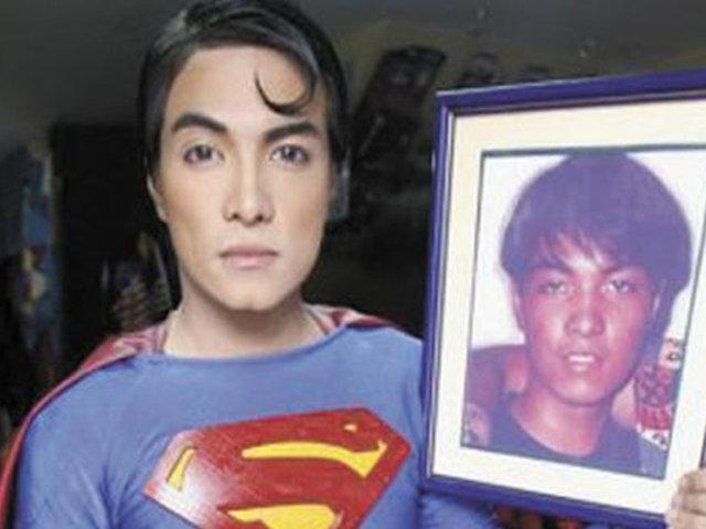 Filipino se ha operado 19 veces para ser igual a Superman