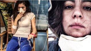 INSÓLITO: mujer desarrolla extraña alergia que le impide acercarse a su marido