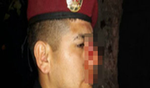 Dos jóvenes en estado de ebriedad le rompieron la nariz a policía