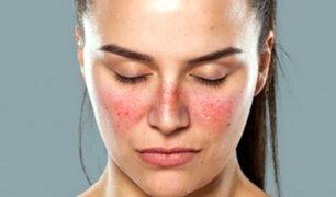 ¿Qué es el lupus? Conoce todo sobre esta enfermedad silenciosa