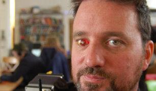 Conoce al 'eyedborg': el joven que tiene una cámara en el ojo