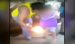 Piura: padre le quema los pies a su hija como castigo