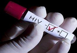 Trasplante de células madre podrían conducir a la erradicación del VIH en el cuerpo