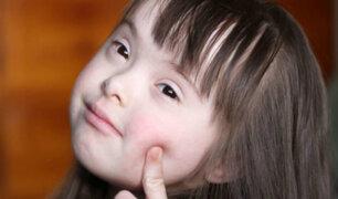 Estos son los beneficios de incluir a niños con Síndrome de Down en la educación regular