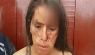 Tarapoto: golpean a mujer tras ganar apuesta en partido de vóley