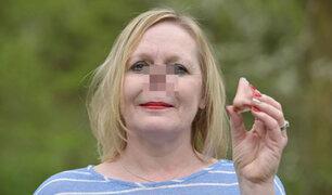 Reino Unido: prótesis magnética le cambió la vida a una mujer sin nariz