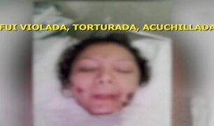 Venezolana que saltó de edificio para no ser asesinada necesita urgente ayuda