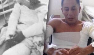 Huancayo: mujer quema a su pareja con discapacidad por celos