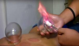 A curar con fuego: conozca las técnicas ancestrales para aliviar dolores
