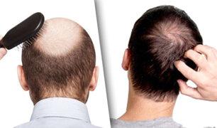 Ciencia avala nuevo producto que acabaría con la calvicie