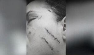Los Olivos: joven quedó desfigurada tras ser agredida en una discoteca