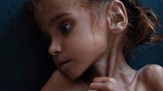 Amal Hussain: falleció la niña símbolo de la hambruna en Yemen