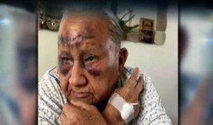 SJM: anciano sufre terrible caída en forado de empresa de telefonía