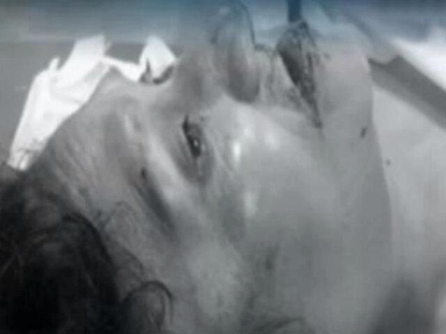 Chorrillos: mujer queda grave tras ser atacada brutalmente por perros