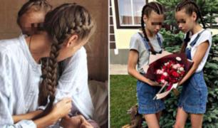 Rusia: gemelas modelos de 14 años fueron obligadas a adelgazar y hoy luchan por su vida