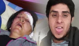 Comas: mujer es brutalmente golpeada con una piedra por su expareja