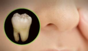 Insólito: hombre descubre que tenía un diente creciendo en la nariz [FOTOS]