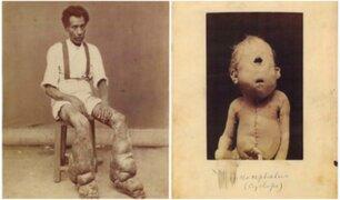 #ElTop10: las fotografías médicas más perturbadoras de la historia