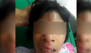 Responsabilizan a directora por incidente de niña con parálisis en colegio de Magdalena