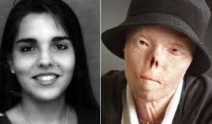 Jacqui Saburido: falleció la mujer del rostro contra conductores ebrios