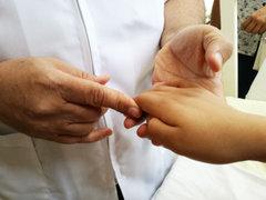 INSN: operarán gratis a niños con deformaciones en las manos