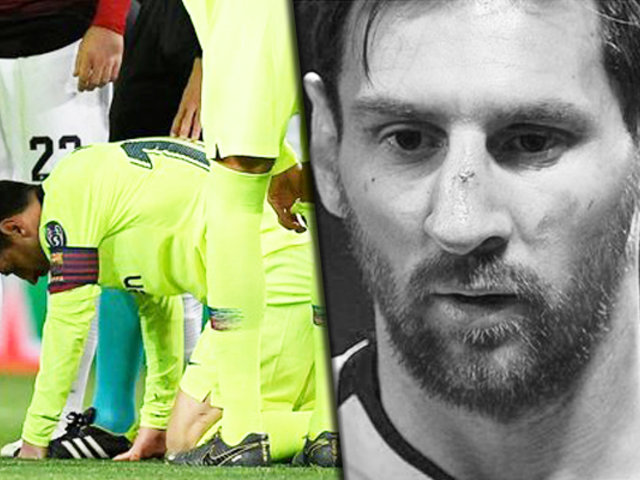 Champions League: Lionel Messi sufrió un corte en el rostro enfretando al  Manchester United