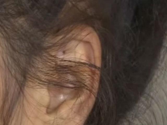 Santa Anita: roban audífono a niña de 8 años con sordera