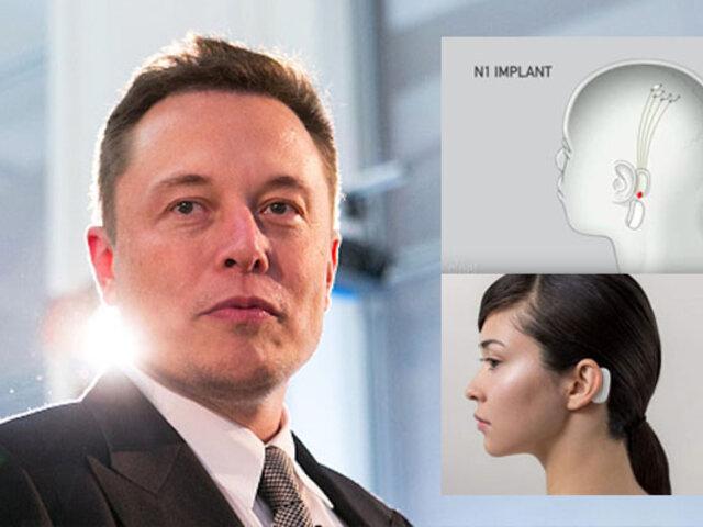 Elon Musk presenta implante que permite controlar tu celular con la mente