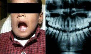 India: extraen más de 500 dientes a niño de siete años