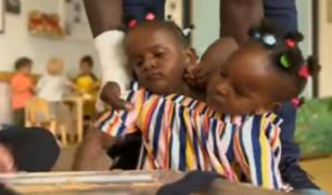 Reino Unido: padre de siamesas tendrá que decidir si sobrevive una o mueren ambas