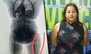 Colombia: detienen a mujer que quiso traficar cocaína líquida implantada en sus muslos