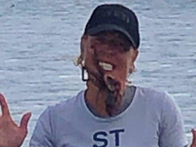 Mujer termina en hospital tras fotografiarse con pulpo en la cara