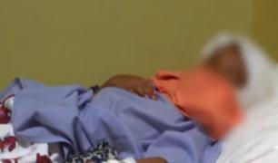Huánuco: perro pitbull ataca a niño y le desfigura el rostro