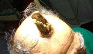 A un anciano le crece extraño ''cuerno del diablo'' al golpearse fuertemente la cabeza