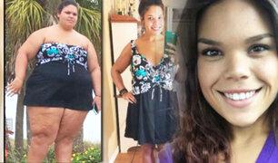 EEUU: se deshizo de dos malos hábitos y perdió 80 kilos en un un año