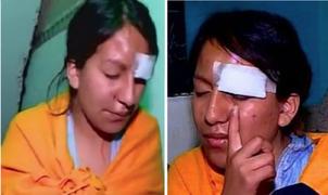 SJL: delincuentes desfiguran a pareja y arrancan parte de la oreja a una de las víctimas durante robo