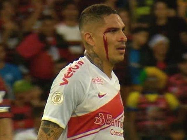 Sangrando y expulsado: Internacional de Paolo perdió por 1 a 3 contra Flamengo