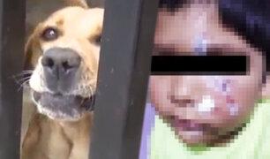 Callao: niño atacado por perro recibe 15 puntos en el rostro