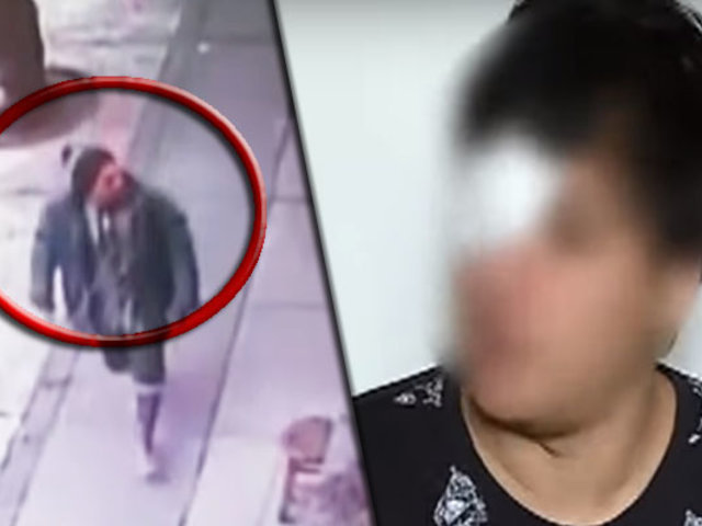"""""""Loco del cuchillo"""": víctima narra como fue atacado salvajemente en Miraflores"""