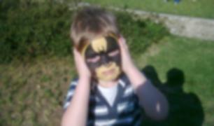 La historia de la bebé nacida con una 'máscara de Batman'