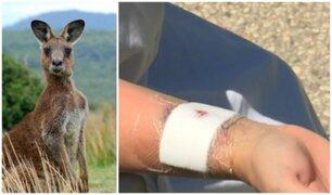 Un canguro ataca violentamente a mujer que paseaba a su perro