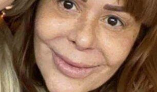 ¡Casi irreconocible!: Alejandra Guzmán y el nuevo aspecto de su cara