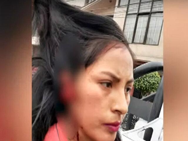 El Agustino: mujer arranca la oreja a estudiante con una mordida