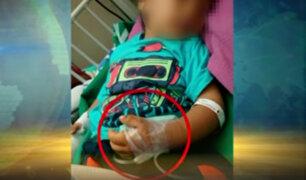 Metro de Lima: niño casi pierde dedos en escalera eléctrica de estación Caja de Agua