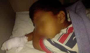 VES: niño casi pierde la mano por prender fuego pirotécnico