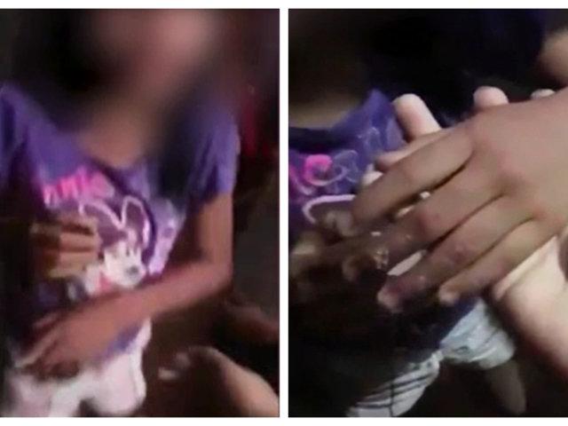 Yurimaguas: mujer quema manos de su hija por tomar dinero