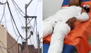 Cusco: niño queda en estado grave tras electrocutarse con cable de media tensión