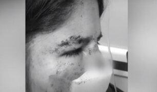 Santa Anita: sujeto arranca parte de la nariz a su pareja de una mordida
