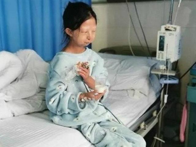 China: murió joven que se alimentaba de arroz para ayudar a su hermano enfermo